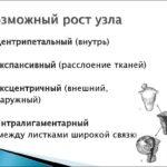 Гиперкератоз языка