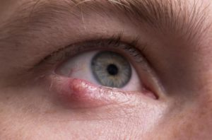 Гнойничок в углу глаза