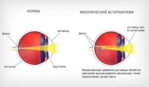 Головная боль миопический астигматизм