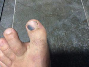 Онемение больших пальцев на ногах и посинение ногтя
