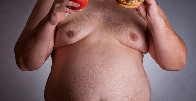 Ожирение и разный размер груди у мальчика
