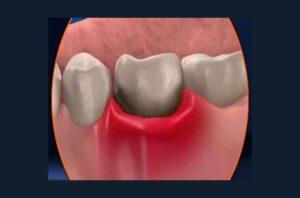 Отек десны после лечения зуба