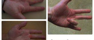 Пальцы рук больно сгибать в кулак по утрам