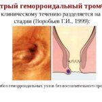 Ошибочная беременность
