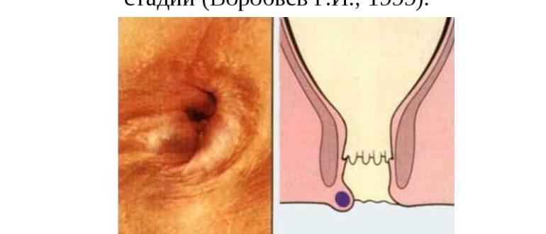 Некроз геммороидального узла при беременности
