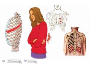 Ощущение давления на рёбра при межрёберной невралгии