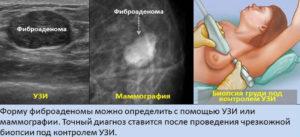 Фиброаденома! Требуется ли операция или можно пока наблюдать?