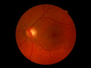 Головная боль, результаты узи и глазного дна