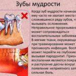 Нет признаков беременности после укола ХГЧ