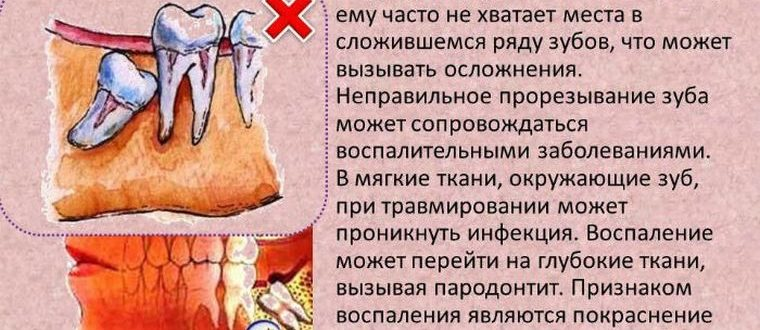 Не определить какой зуб болит