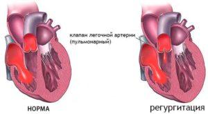 Незначительная регургитация на трикуспидальном клапане и клапане легочной артерии (1 степени