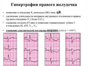 Гипертрофия левого желудочка и спорт