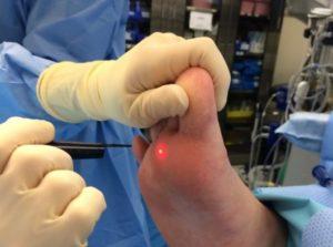 Онемение пальца 5 дней после удаления бородавки