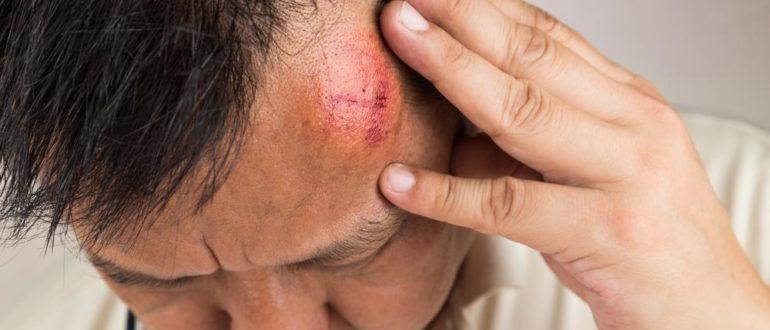 Головные боли после дтп