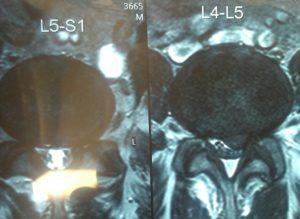Нужно ли лечение рубцово-спаечного эпидурита на уровне диска L5/s1