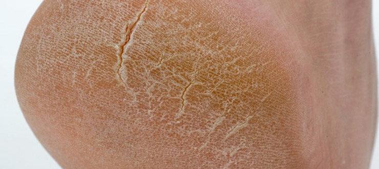 Грубая кожа с белым налётом