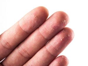 Облазит кожа на подушечках пальцев рук