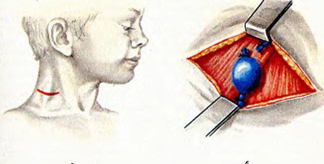 Флэбэктазия яремной вены у ребёнка